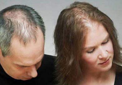 11 Reasons That Cause Men, Women and Children to Lose Hair