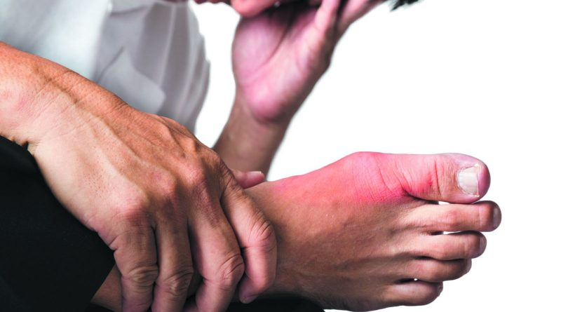 Gout Complications and Long-Term Prognosis