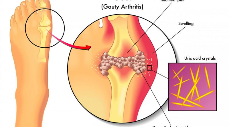 What Causes Gout and What Factors Can Trigger its Onset?