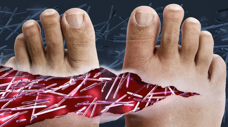 What Does Gout Feel Like? Symptoms and Signs