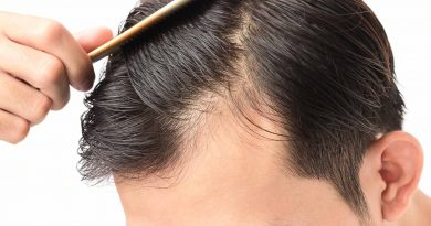 Hair Loss Treatments At Home: How Natural Remedies Work?